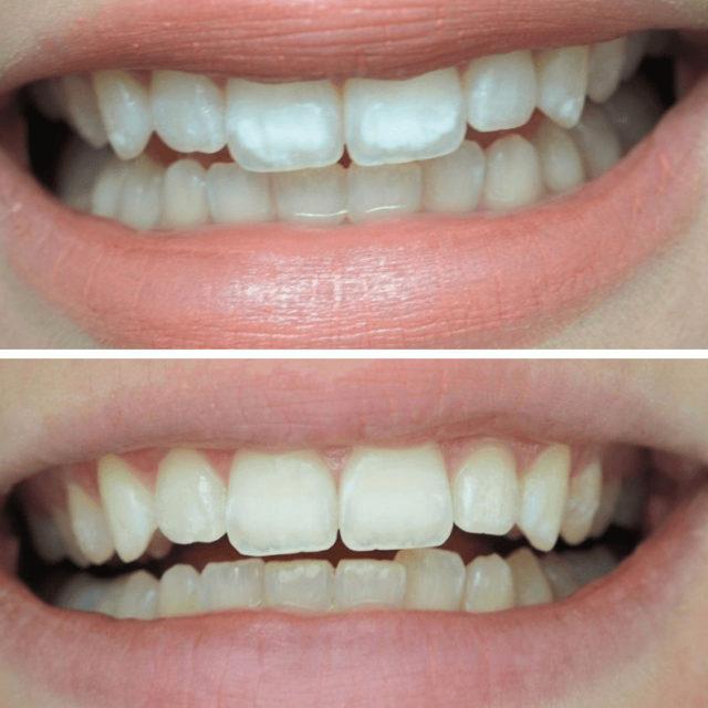 Glitteriaddikti-bloggaaja Annan hymy ennen ja jälkeen SmileSpan hoitojen.