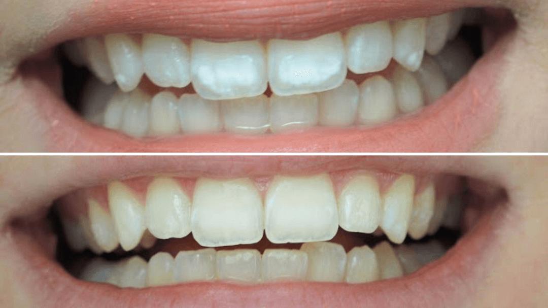 Asiakkaan hymy ennen ja jälkeen SmileSpan White Spot -hoidon